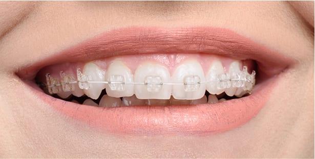 qst fixed braces